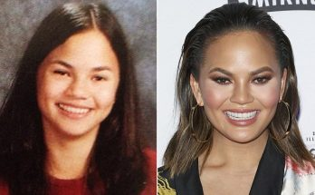 Chrissy Teigen Says She Was Only KIDDING About Plastic Surgery!