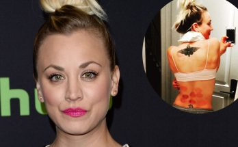 CUPPING AWAY HER PAIN: Kaley Cuoco Shows Off Her New Bruises!