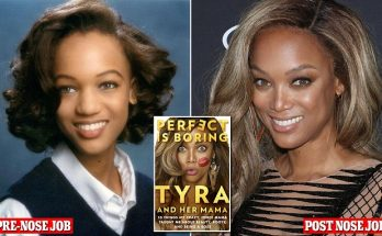 Tyra Banks Reveals NOSE JOB